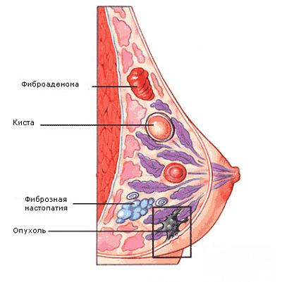 Секторальная резекция молочной железы, стоимость операции